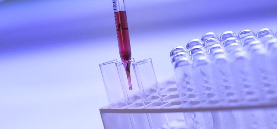 Lo screening precoce per i difetti multifattoriali e le aneuploidie: dai DTN alla Trisomia 21